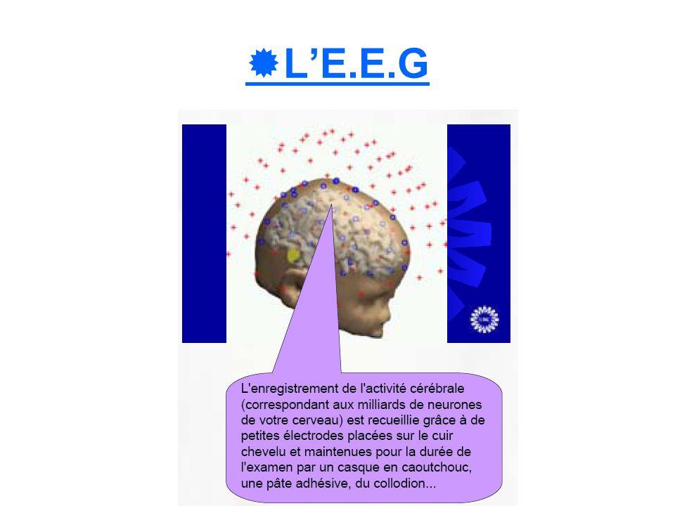 L'E.E.G