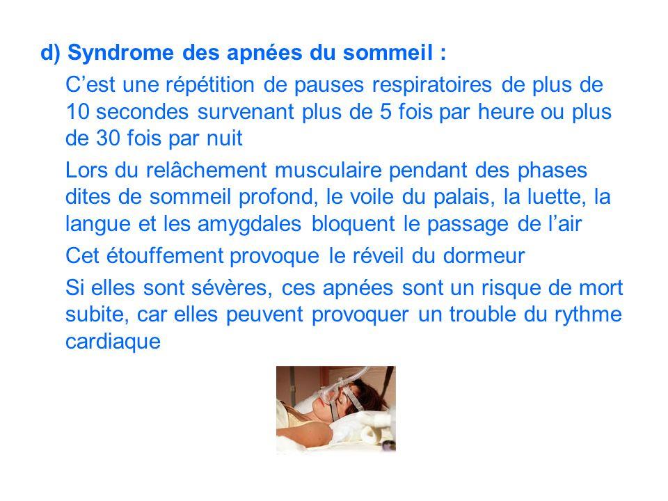 d) Syndrome des apnées du sommeil :
