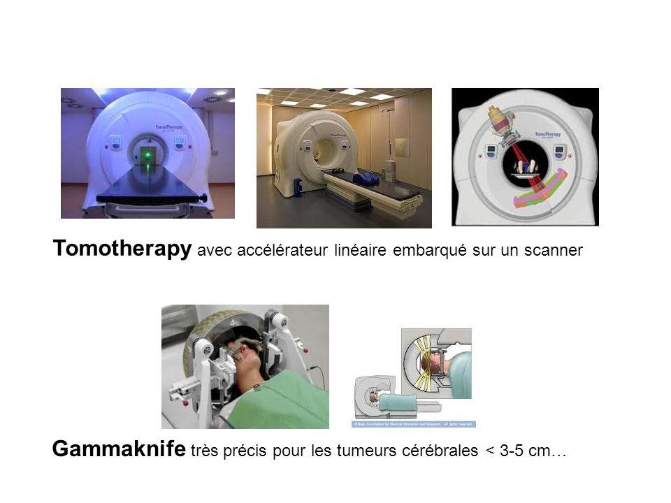 Tomotherapy avec accélérateur linéaire embarqué sur un scanner