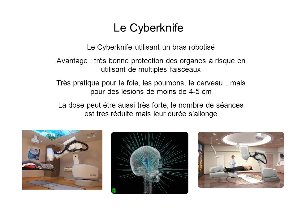 Le Cyberknife utilisant un bras robotisé