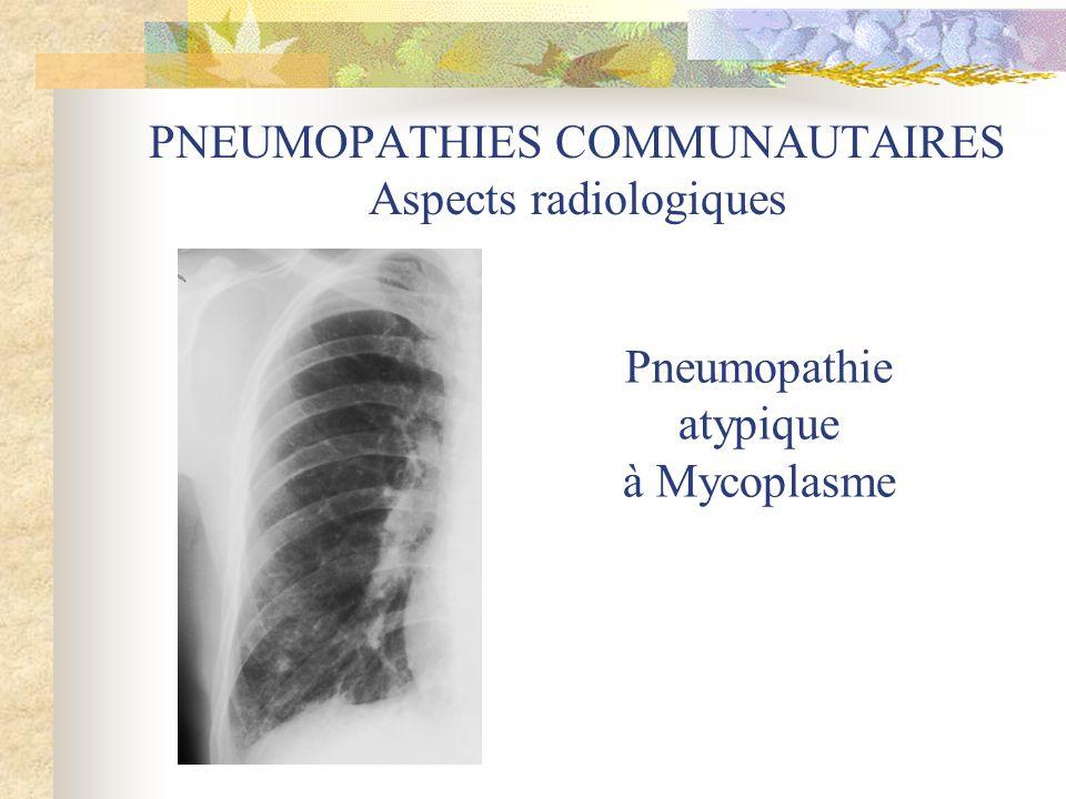 PNEUMOPATHIES COMMUNAUTAIRES Aspects radiologiques