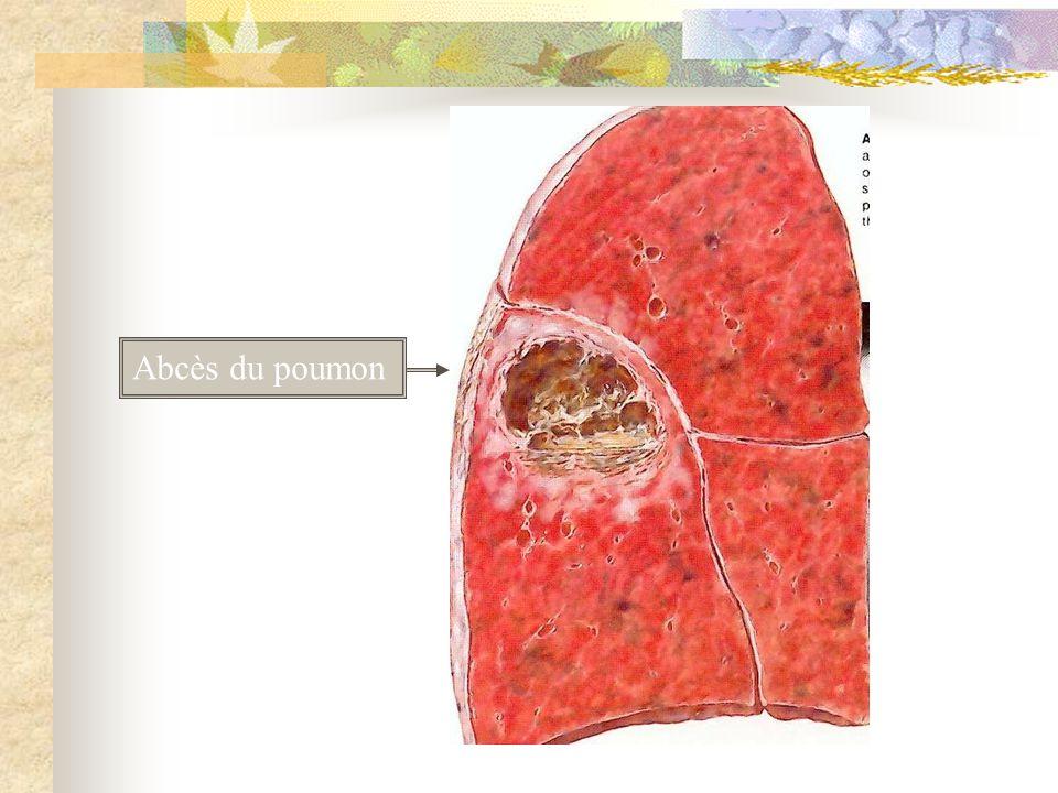 Abcès du poumon