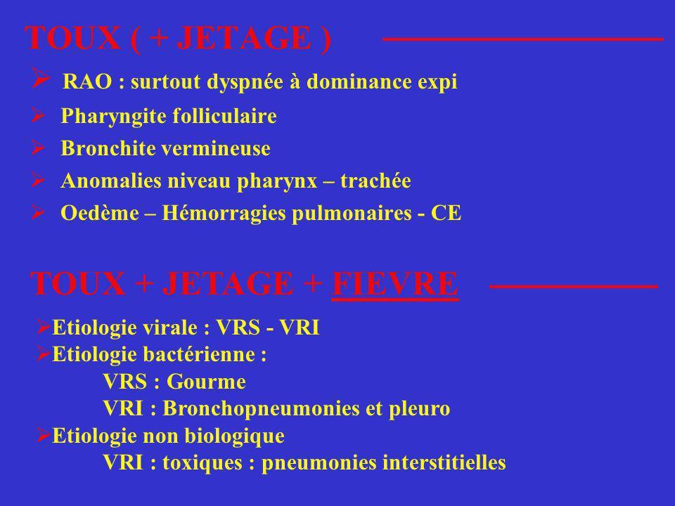 TOUX ( + JETAGE ) TOUX + JETAGE + FIEVRE