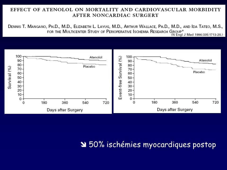  50% ischémies myocardiques postop