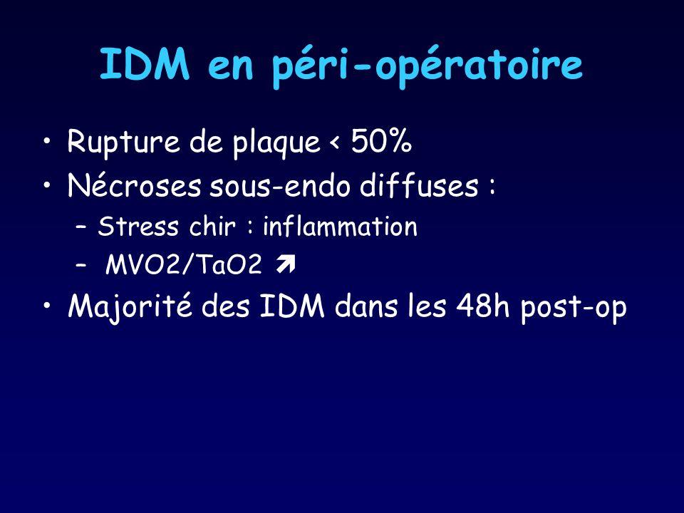 IDM en péri-opératoire