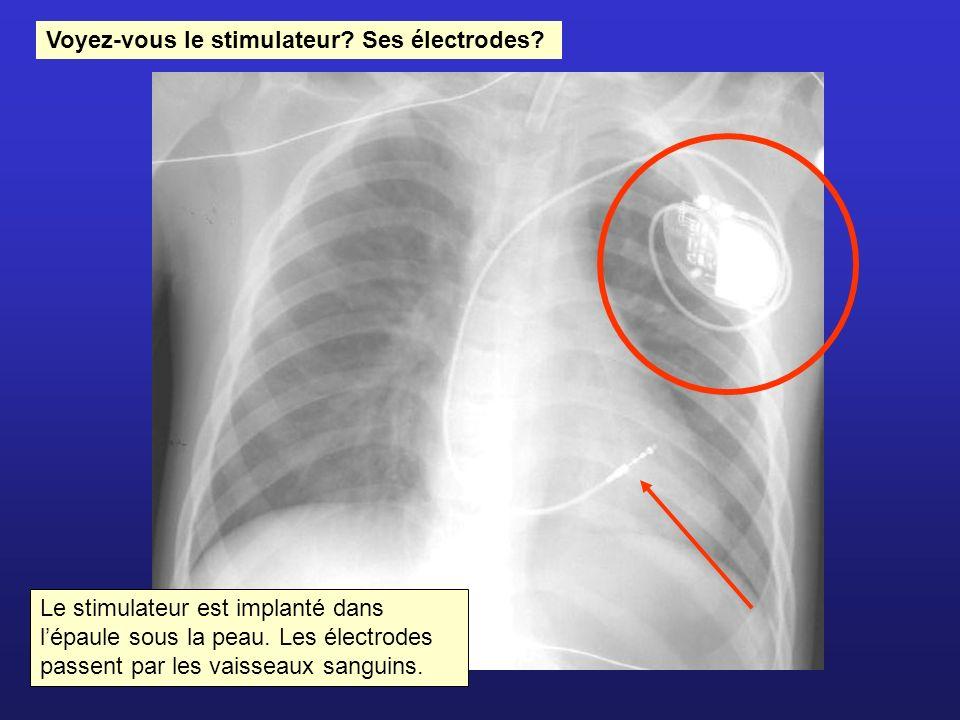 Voyez-vous le stimulateur Ses électrodes