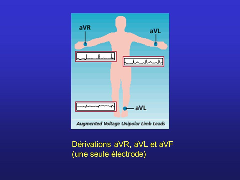 Dérivations aVR, aVL et aVF (une seule électrode)