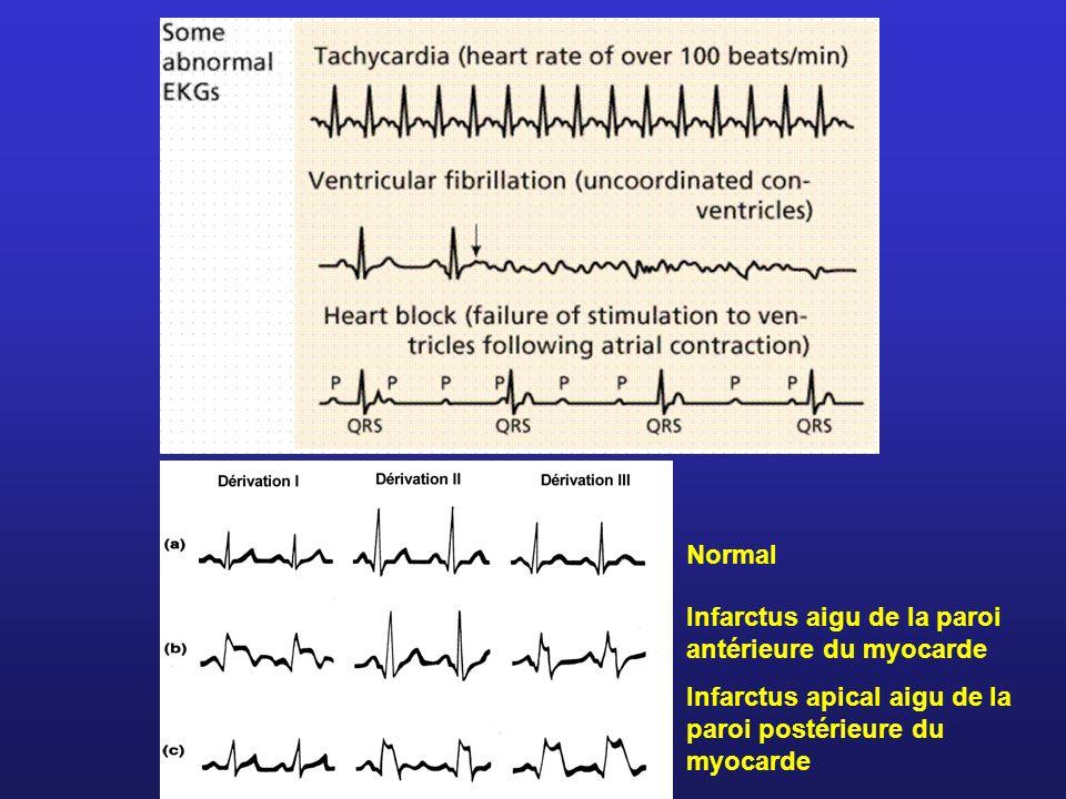 NormalInfarctus aigu de la paroi antérieure du myocarde.