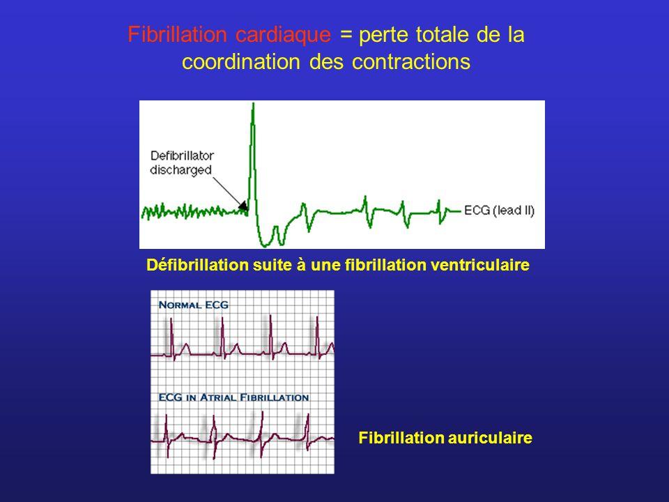 Fibrillation cardiaque = perte totale de la coordination des contractions