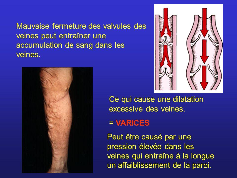 Mauvaise fermeture des valvules des veines peut entraîner une accumulation de sang dans les veines.