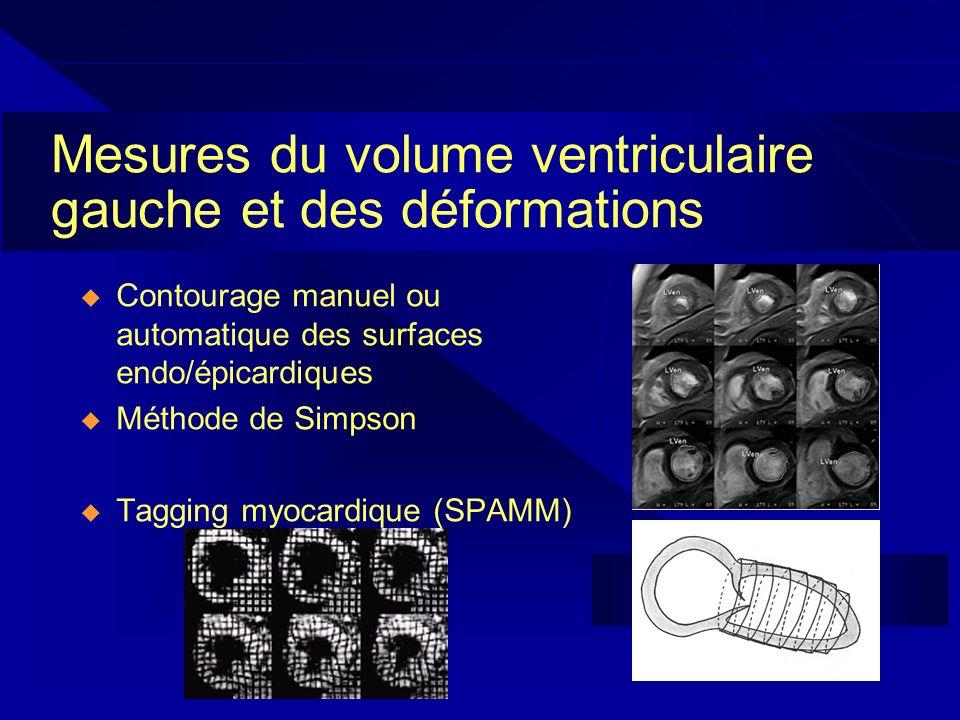 Mesures du volume ventriculaire gauche et des déformations
