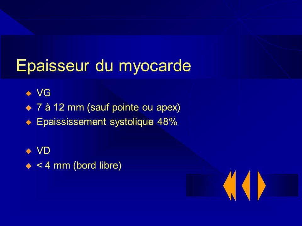 Epaisseur du myocarde VG 7 à 12 mm (sauf pointe ou apex)