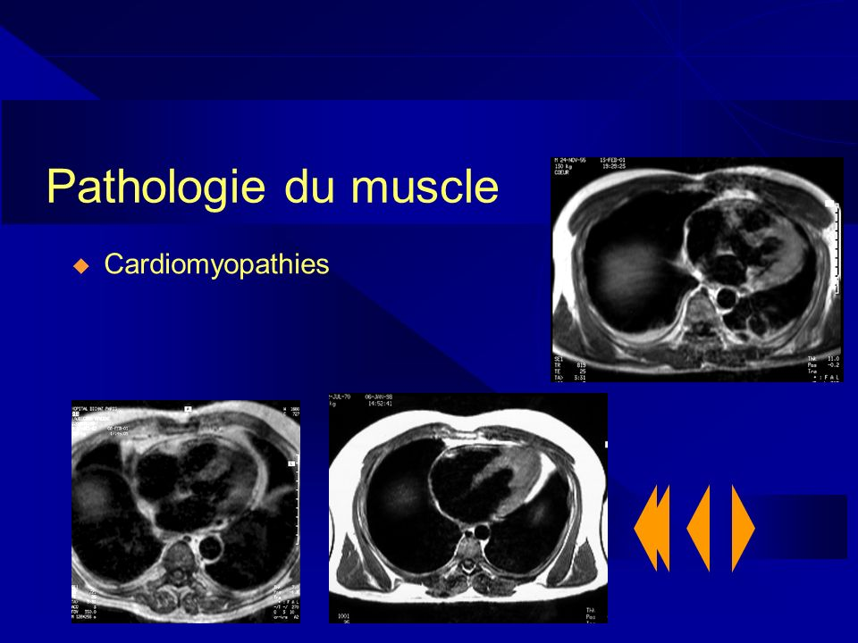 Pathologie du muscle Cardiomyopathies