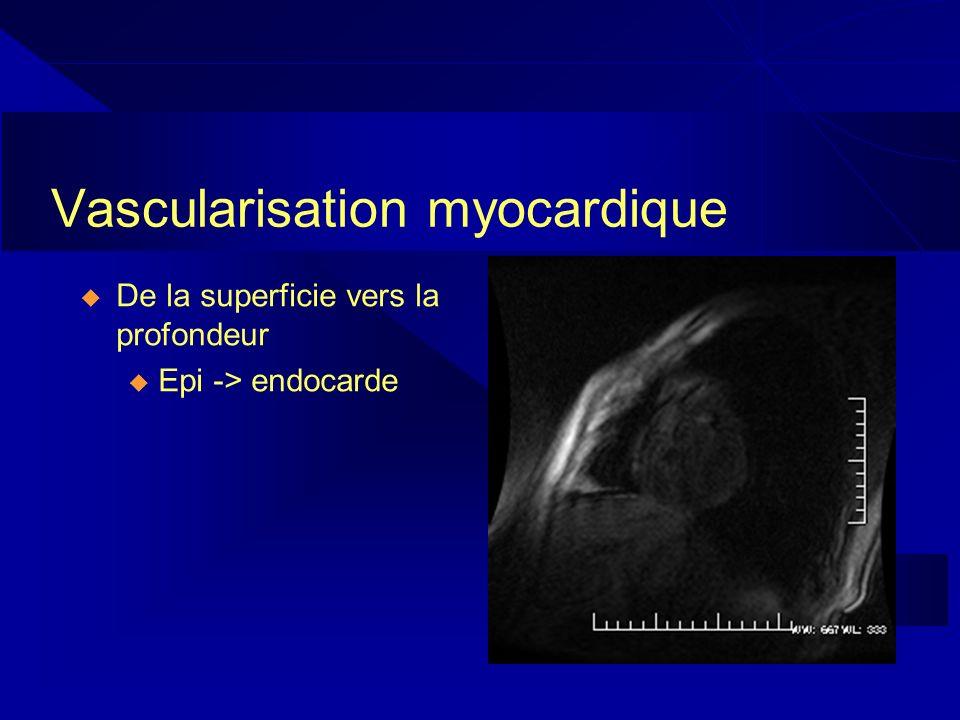 Vascularisation myocardique