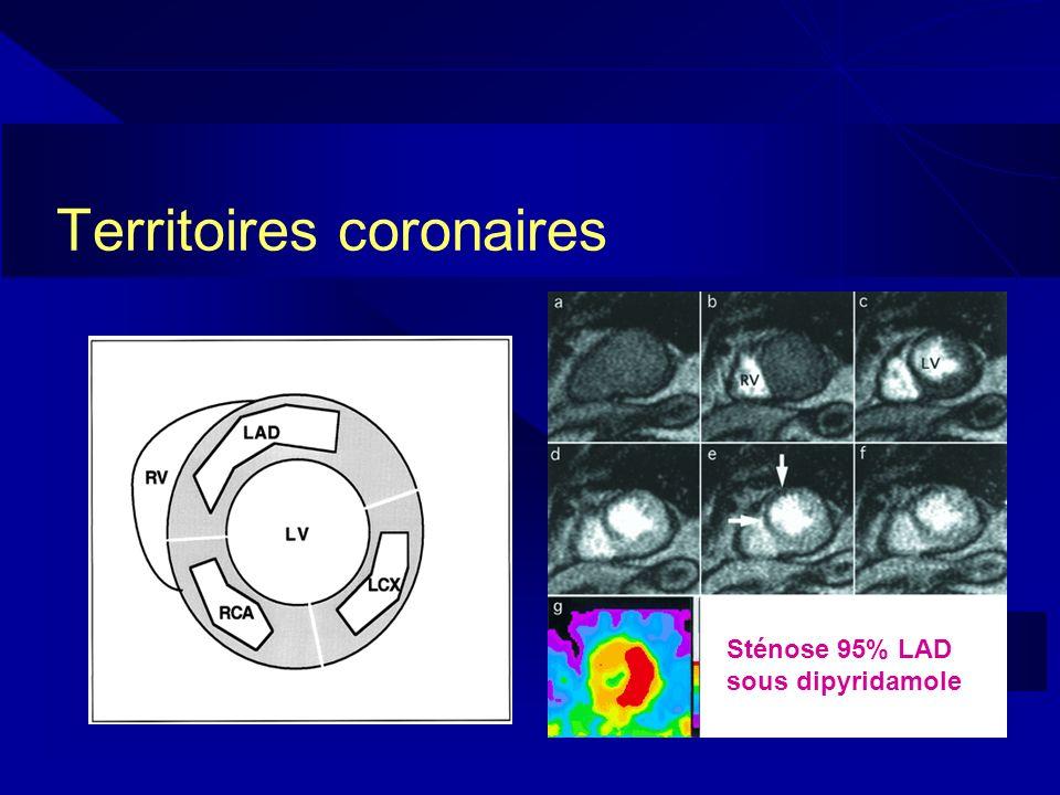 Territoires coronaires