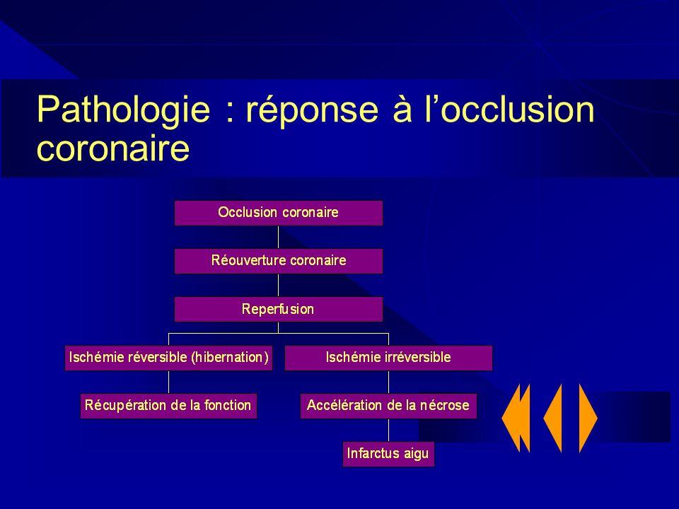 Pathologie : réponse à l'occlusion coronaire