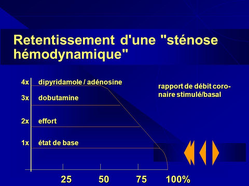 Retentissement d une sténose hémodynamique
