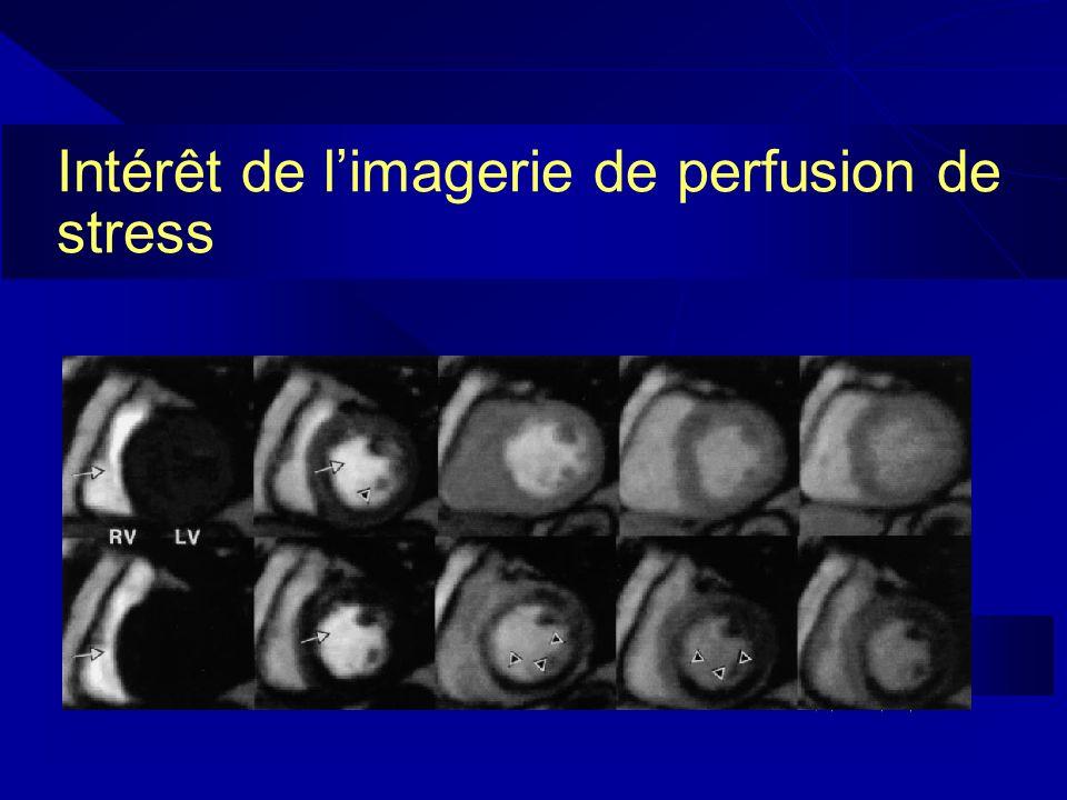 Intérêt de l'imagerie de perfusion de stress