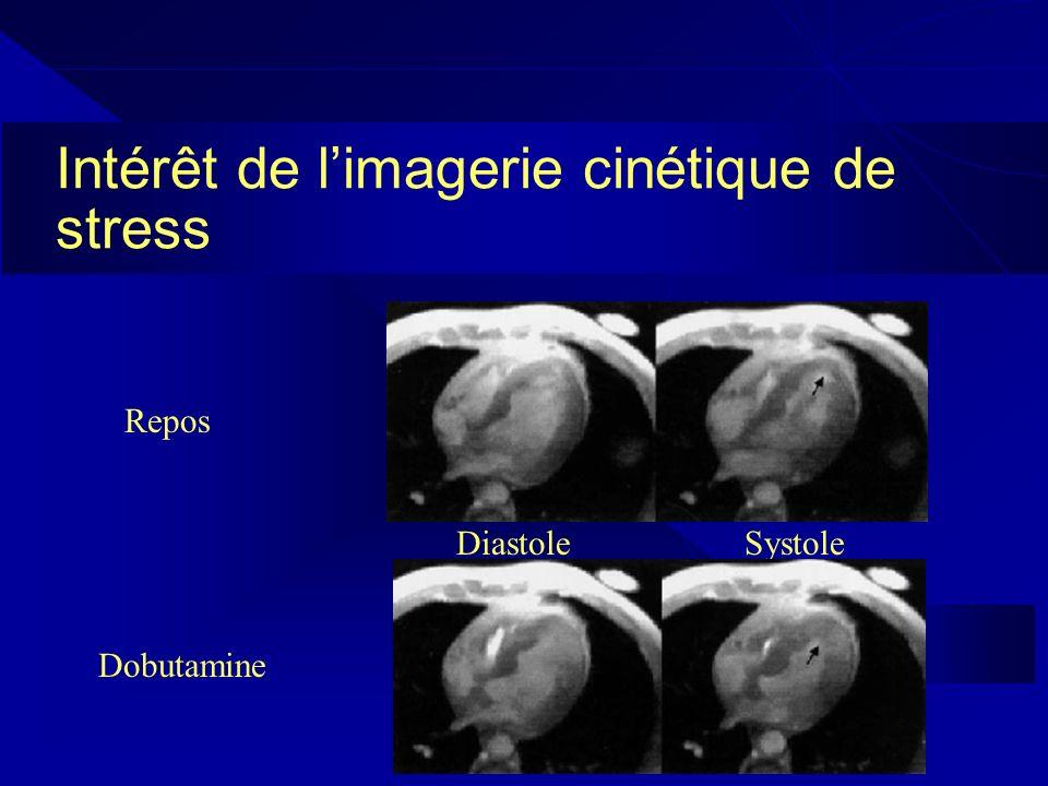 Intérêt de l'imagerie cinétique de stress