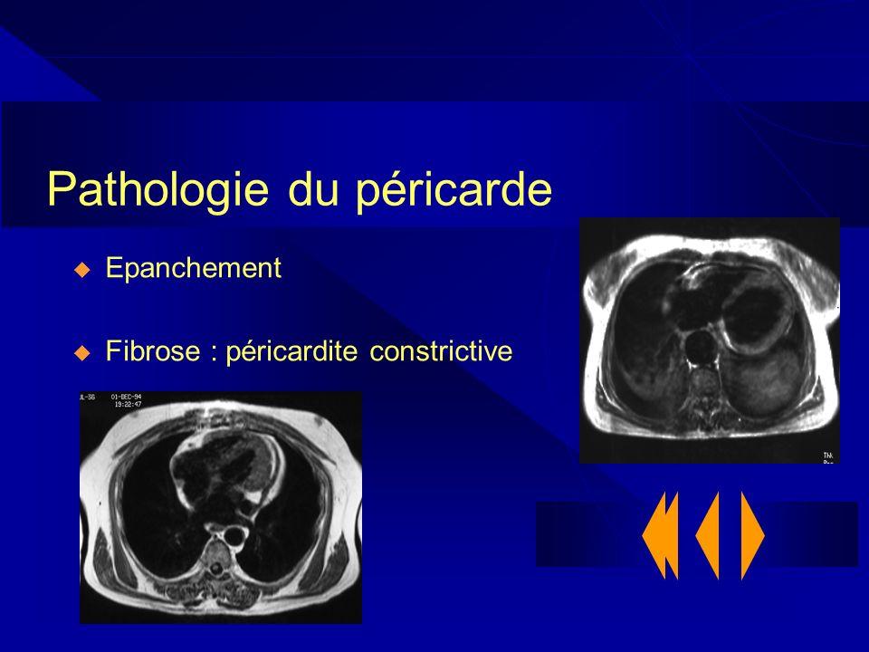 Pathologie du péricarde