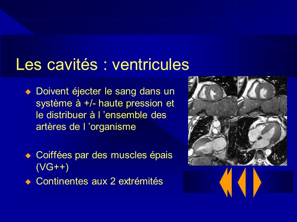 Les cavités : ventricules