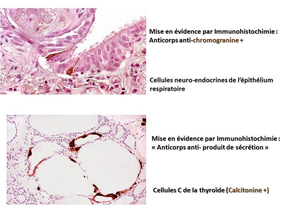 Mise en évidence par Immunohistochimie :