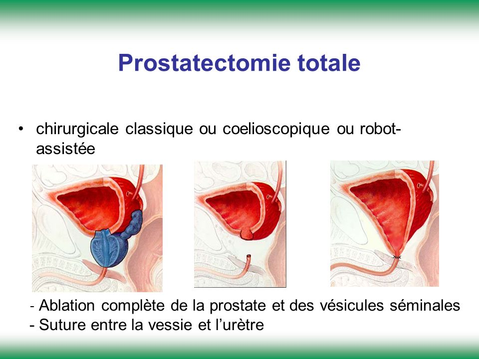 Prostatectomie totale