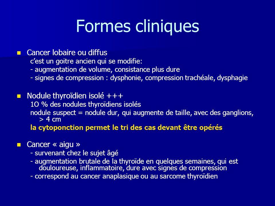 Formes cliniques Cancer lobaire ou diffus Nodule thyroïdien isolé +++