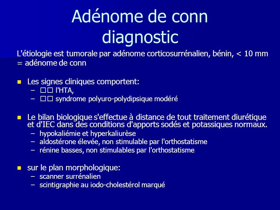 Adénome de conn diagnostic