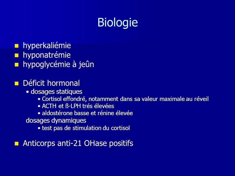 Biologie hyperkaliémie hyponatrémie hypoglycémie à jeûn