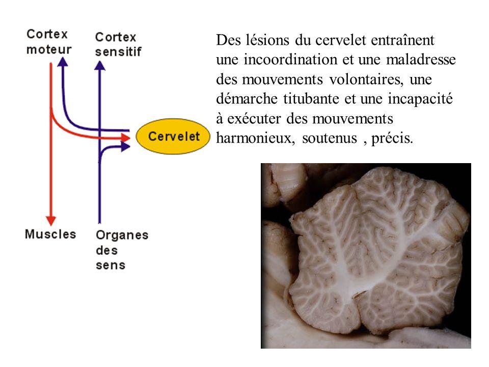 Des lésions du cervelet entraînent une incoordination et une maladresse des mouvements volontaires, une démarche titubante et une incapacité à exécuter des mouvements harmonieux, soutenus , précis.