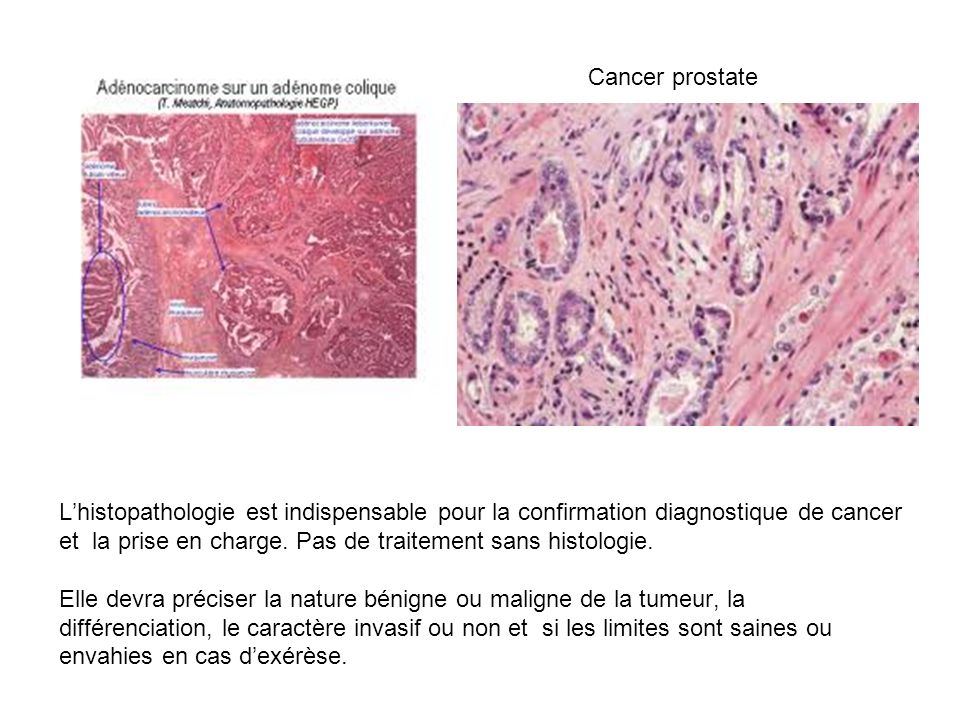 Cancer prostate