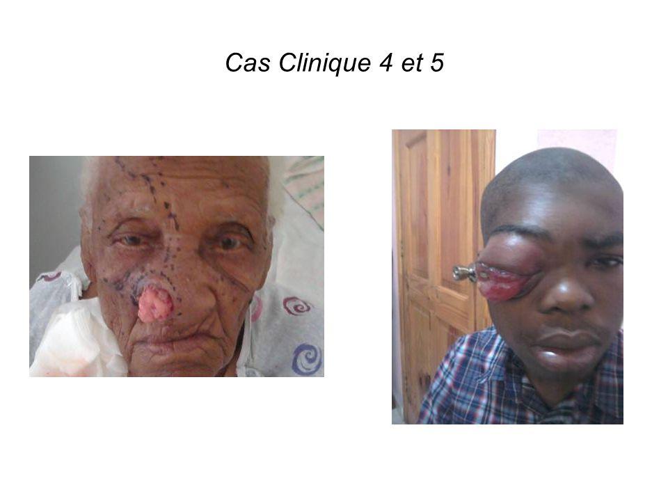 Cas Clinique 4 et 5