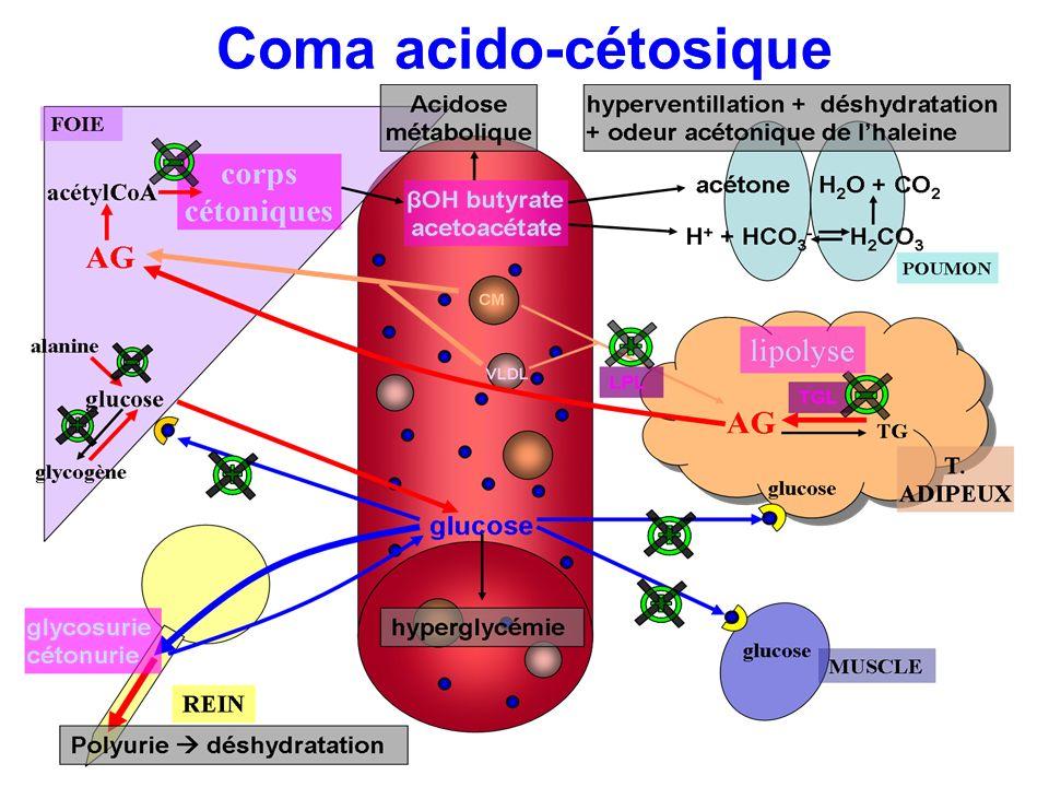 Coma acido-cétosique