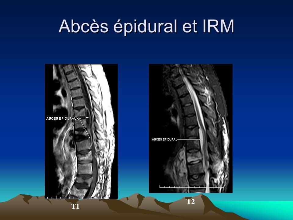 Abcès épidural et IRM T2 T1