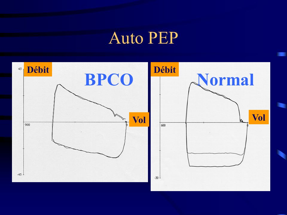 Auto PEP Débit Débit BPCO Normal Vol Vol