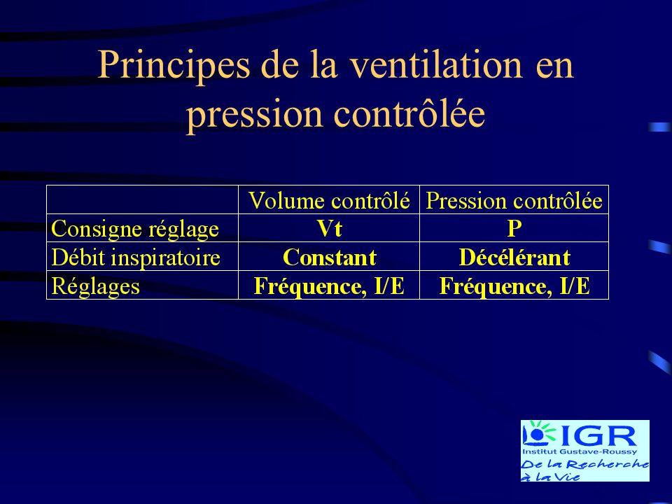 Principes de la ventilation en pression contrôlée