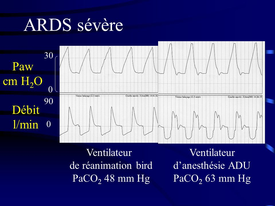 d'anesthésie ADU PaCO2 63 mm Hg