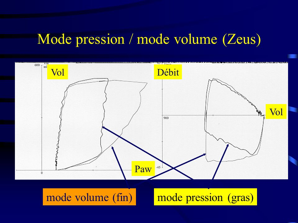Mode pression / mode volume (Zeus)