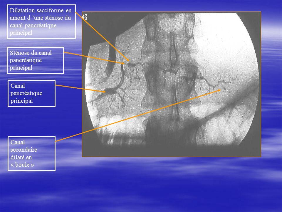 Dilatation sacciforme en amont d 'une sténose du canal pancréatique principal
