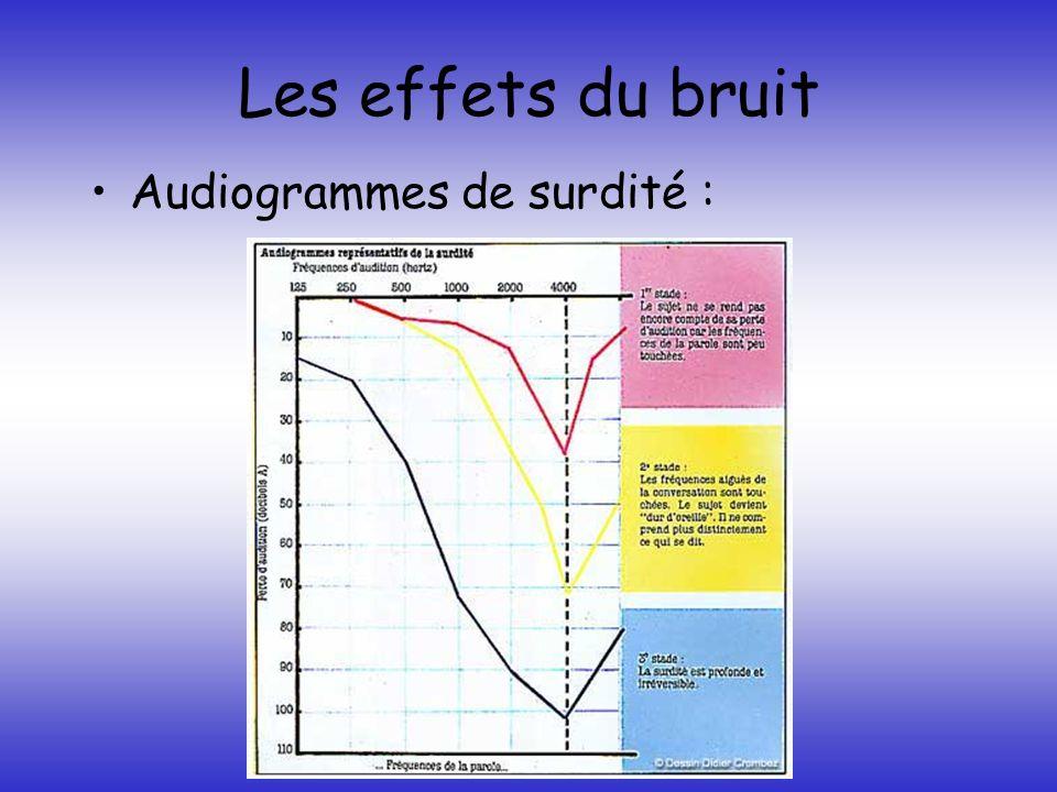 Les effets du bruit Audiogrammes de surdité :