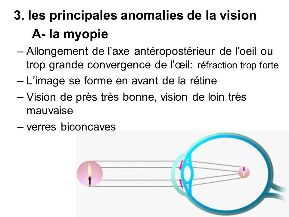 3. les principales anomalies de la vision A- la myopie
