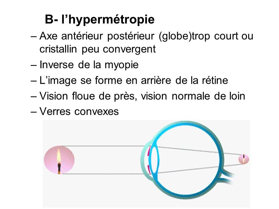 B- l'hypermétropie Axe antérieur postérieur (globe)trop court ou cristallin peu convergent. Inverse de la myopie.