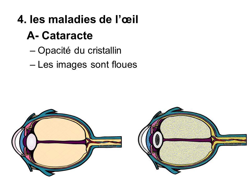 4. les maladies de l'œil A- Cataracte Opacité du cristallin