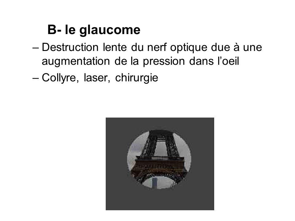 B- le glaucome Destruction lente du nerf optique due à une augmentation de la pression dans l'oeil.