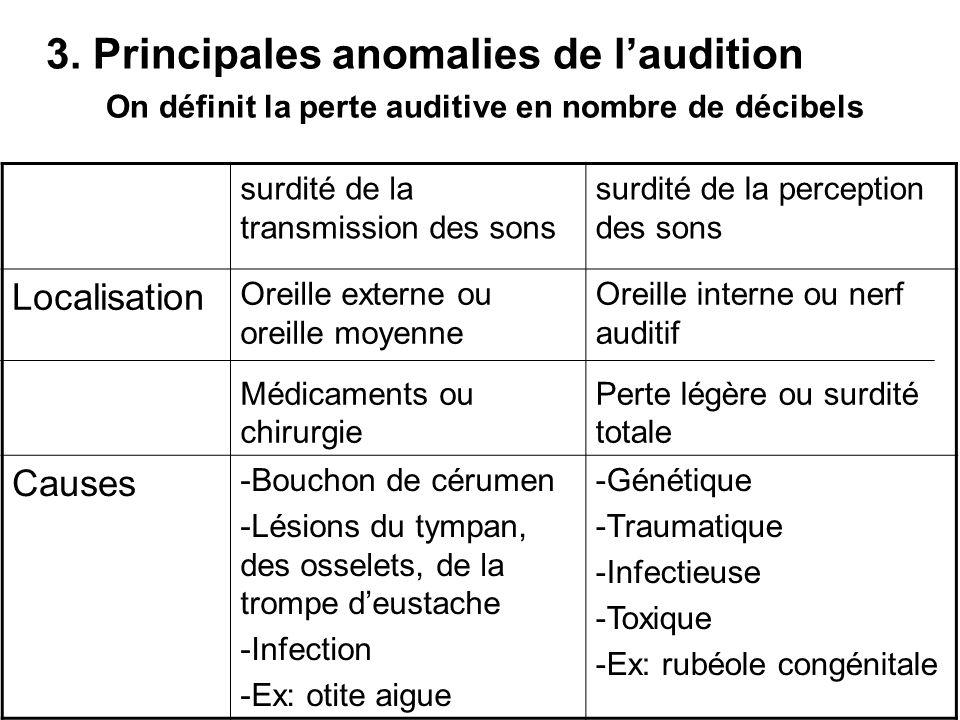 3. Principales anomalies de l'audition