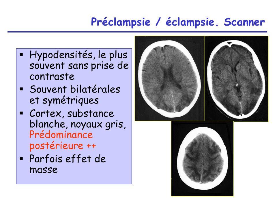 Préclampsie / éclampsie. Scanner