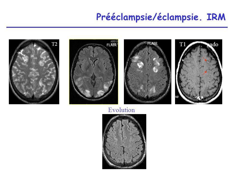 Prééclampsie/éclampsie. IRM
