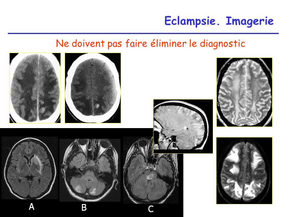 Eclampsie. Imagerie Ne doivent pas faire éliminer le diagnostic A B C