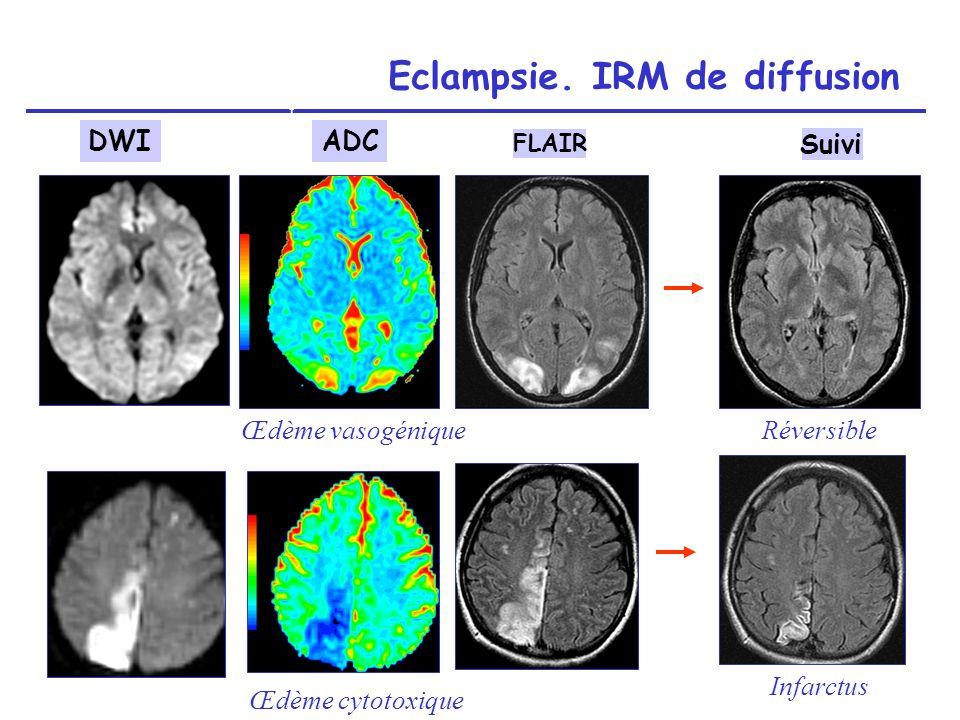Eclampsie. IRM de diffusion